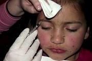 Botoxot adott nyolcéves lányának egy anya