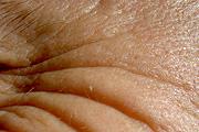 A nők ráncaiból megjósolható csontjaik töréskockázata