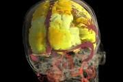 Az orgazmus az agy szimfóniája